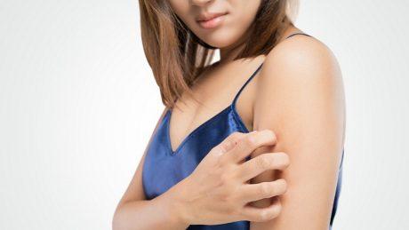 日焼けした肌がかゆい!掻かずにかゆみを和らげる3つの対処法