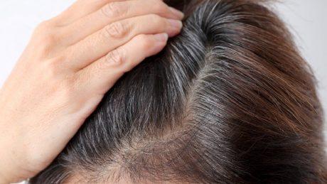 白髪の抜きすぎにはご注意!頭皮にやさしい白髪対策について
